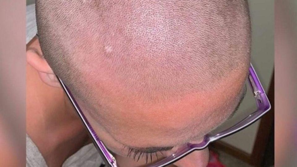 Der Glatzkopf von Ashley Rose