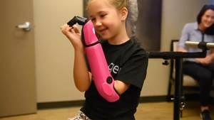 USA: Achtjährige bekommt bionische Armprothese – Mady hat's wieder im Griff