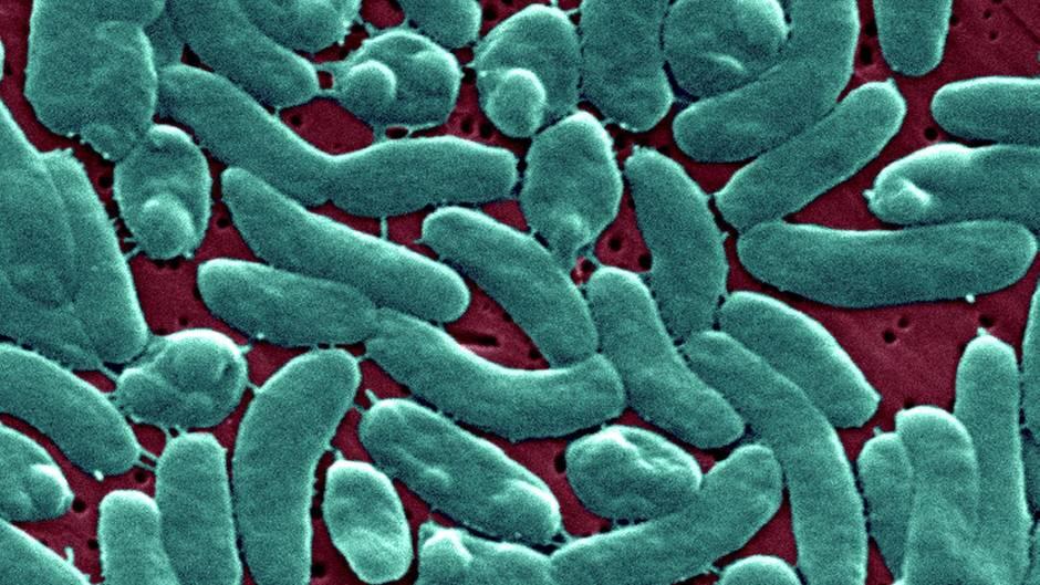 Frau stirbt durch Vibrionen aus Ostsee: Bakterien der Gattung Vibrio vulnificus