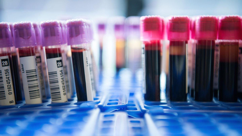 Bluttest: Röhrchen mit Blutproben stehen während einer Blutspende in Behältern