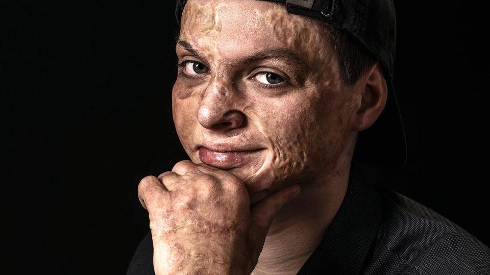 Adrian Esper (20)