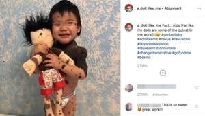 Ein Junge mit vielen Muttermalen mit seiner Puppe