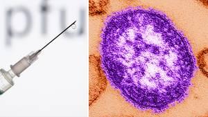 Masern in Europa: Eine Spritze und ein Masern-Virus