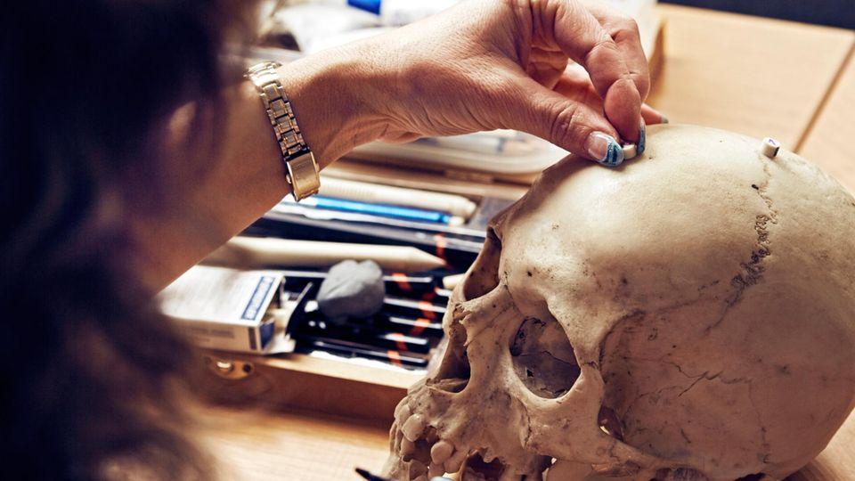 Frau Steffi Burrath verteilt Marker auf dem Schädel