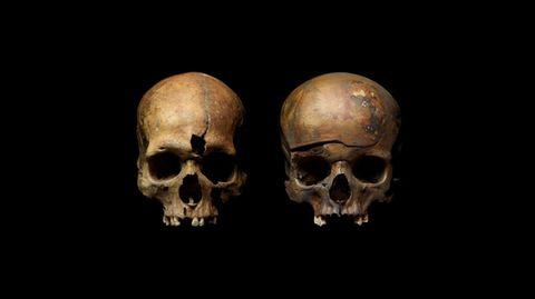 Die Toten zeigen Spuren extremer Gewalt. Links sind die Spuren eine Einstichs in die Stirn zu sehen, der Schädel rechts ist geborsten.