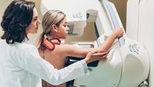 Früherkennung von Krebs: Eine Frau nimmt an einem Mammographie-Screening teil