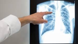 Das Röntgenbild einer Lunge