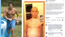 David Fajgenbaum links gesund beim Sport, rechts mit aufgeblähtem Bauch und Glatze während der Chemotherapie
