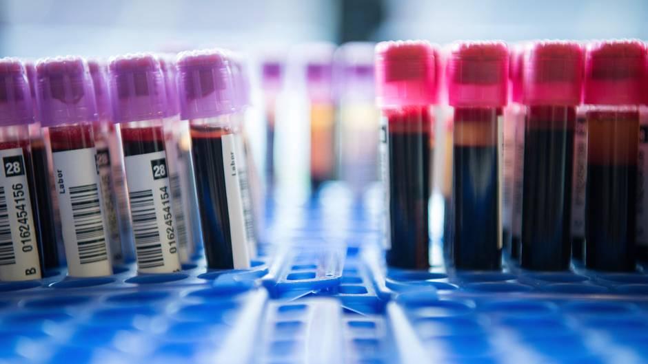 Trisomie-Test: Röhrchen mit Blutproben
