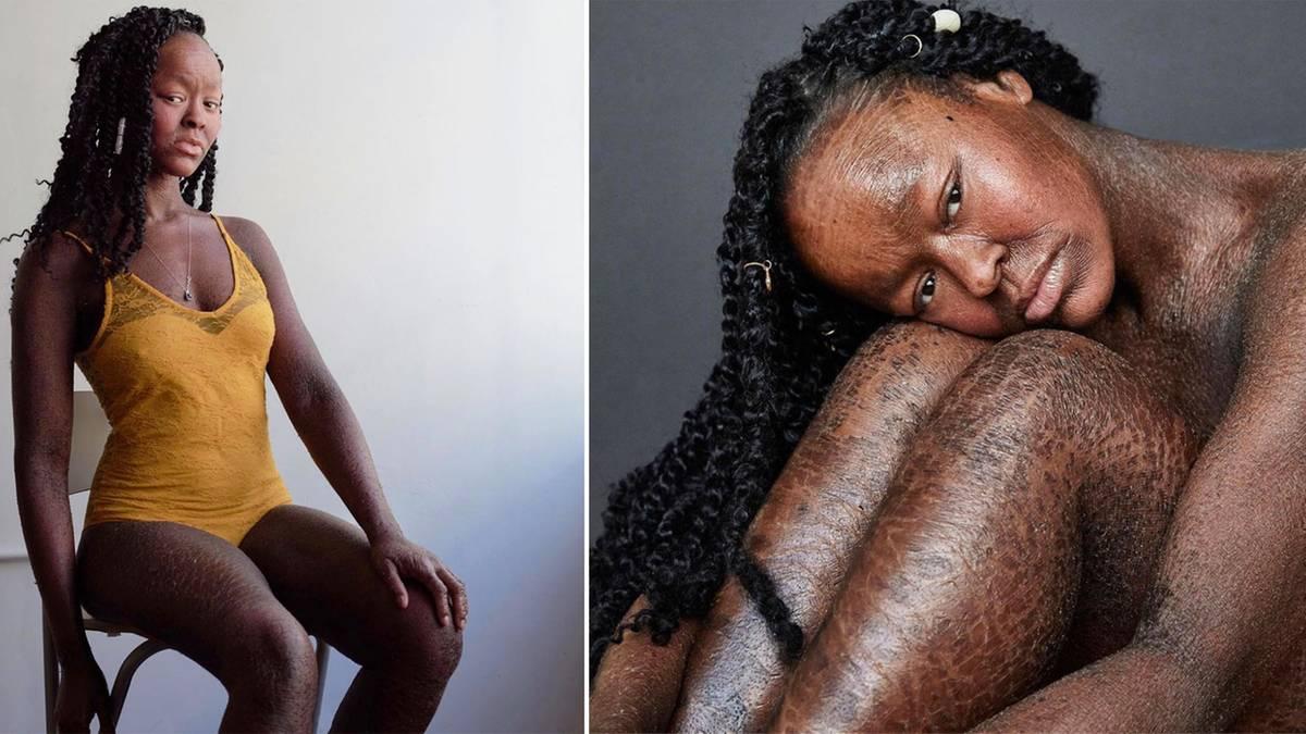 """Seltene Hautkrankheit: Diese Frau """"häutet"""" sich alle zwei Wochen – und startet trotzdem als Model durch"""