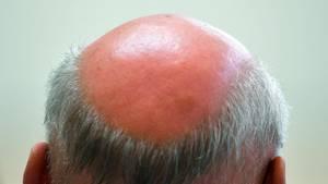 Die Glatze eines Mannes