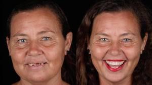 Dieser Zahnarzt macht armen Menschen kostenlos neue Zähne