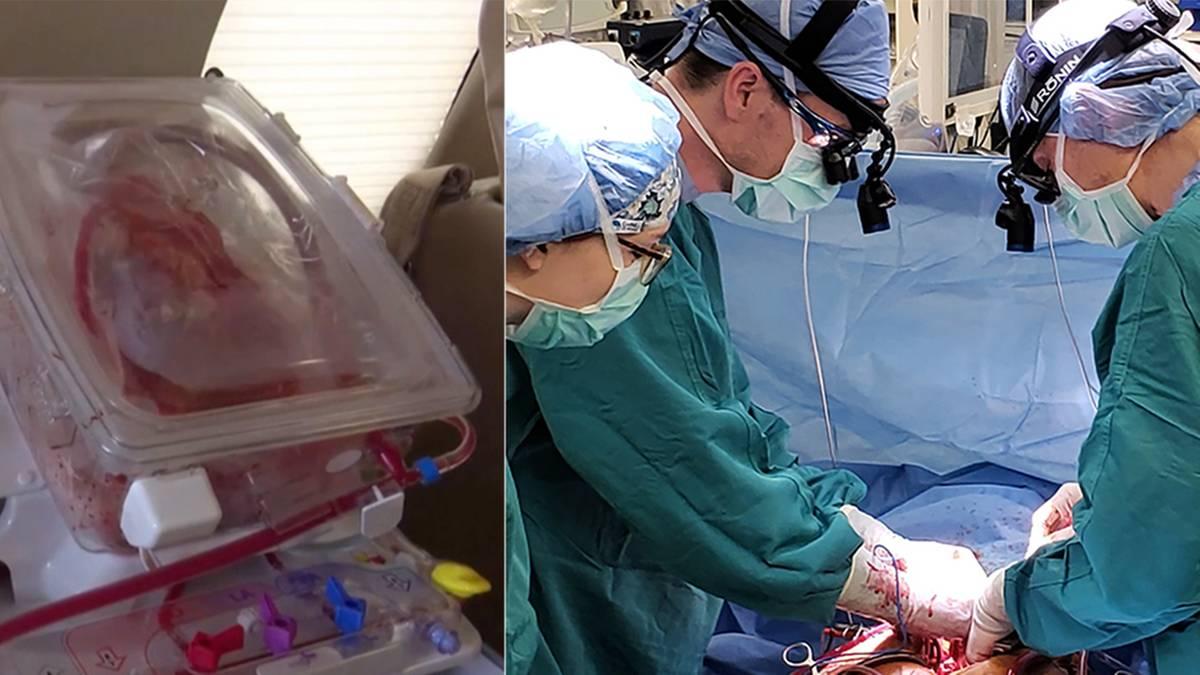 umstrittenes-verfahren-us-rzte-transplantieren-herz-eines-mannes-der-nicht-hirntot-ist-eine-maschine-l-sst-es-f-r-mehrere-stunden-k-nstlich-schlagen