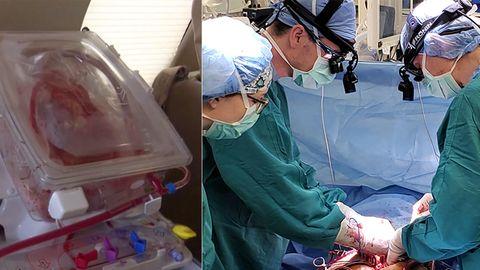 Collage: Menschliches Herz, Operation