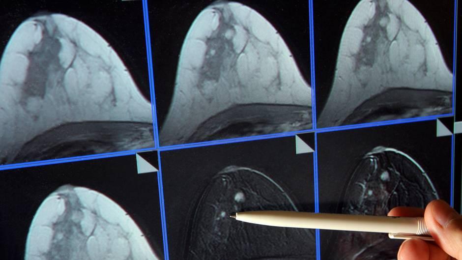 Eine Hand zeigt mit einem weißen Kugelschreiber auf einen hellen Punkt im Mammografie-Bild einer weiblichen Brust