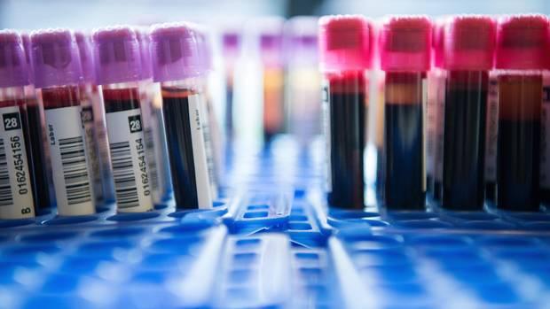 PSA-Test: Röhrchen mit Blutproben stehen in einem Labor
