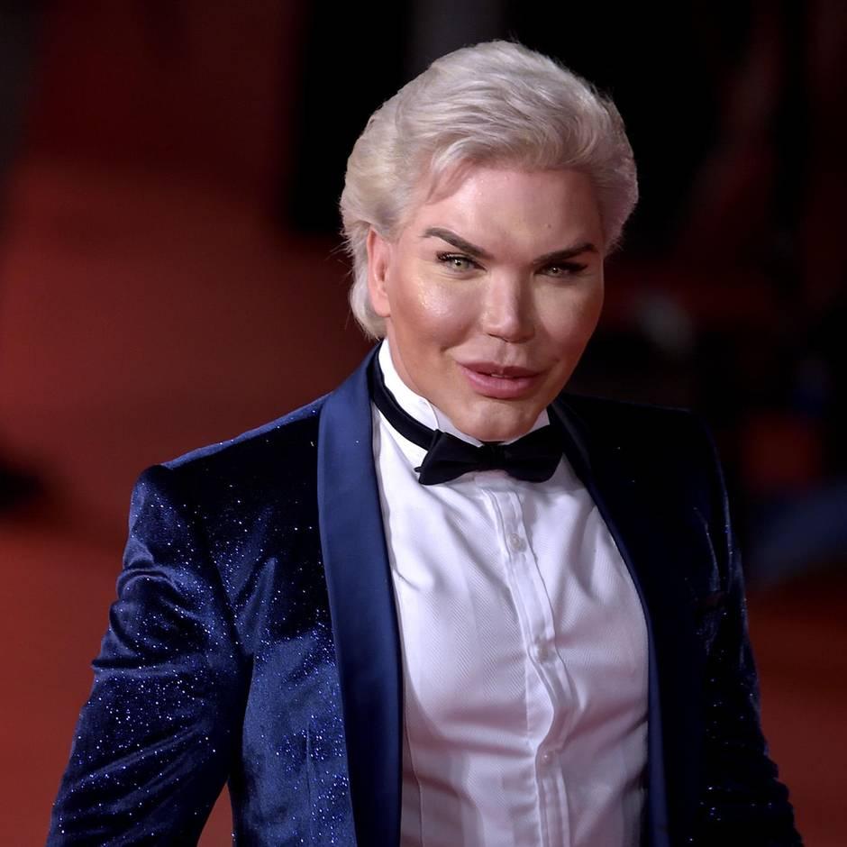 Roddy Alves: Coming-out als Transfrau: Human Ken ist jetzt Human Barbie