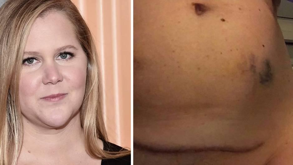 US-Komikerin : Amy Schumer postet ein Foto ihres Bauches mit blauen Flecken und stößt eine ernste Diskussion an