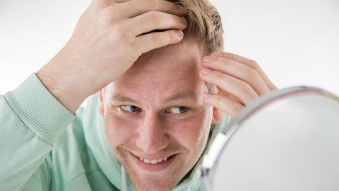 Mann untersucht seine Geheimratsecken