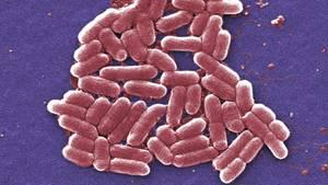 Sepsis: E.coli-Bakterien im Mikroskop