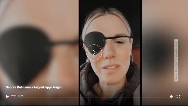 Luftballon geplatzt – jetzt Augenklappe: RTL-Moderatorin wendet sich in einem Video an ihre Fans