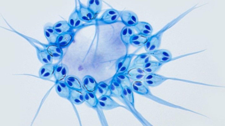 """""""Henneguya salminicola"""" ist ein mehrzeliges Lebewesen, das keinen Sauerstoff benötigt."""