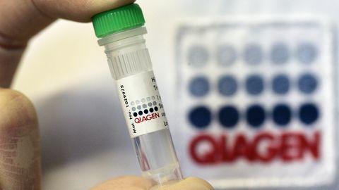 Das Biotech-Unternehmen Qiagen hat einen Corona-Schnelltest entwickelt - und wird nun von einem US-Konzern übernommen