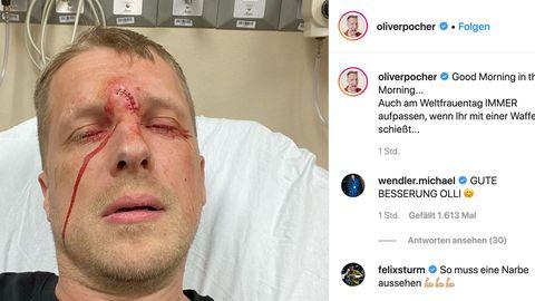 Oliver Pocher Instagram Jagdunfall