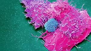 Die menschliche Immunabwehr