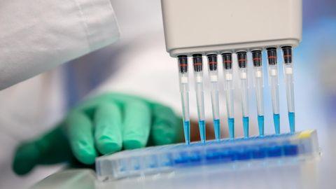 Damit man nach einer Coronavirus-Infektion als geheilt eingestuft wird, sind zwei negative Tests notwendig (Symbolbild)