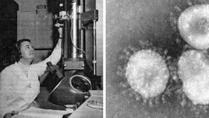 June Almeida wusste, wie man aus den Elektronenmikroskopen das Optimum herausholen konnte-