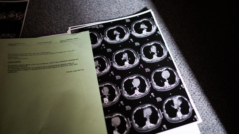 Covid-19: Röntgenaufnahmen der Lunge