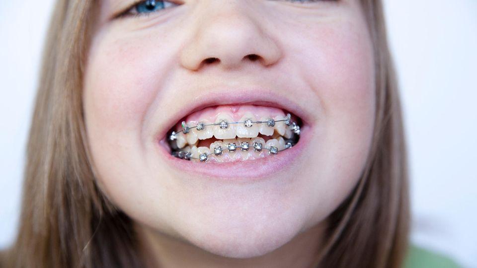 Schiefe Zähne: Zu oft, zu lange, zu schlecht: Was bei Zahnspangen schief läuft