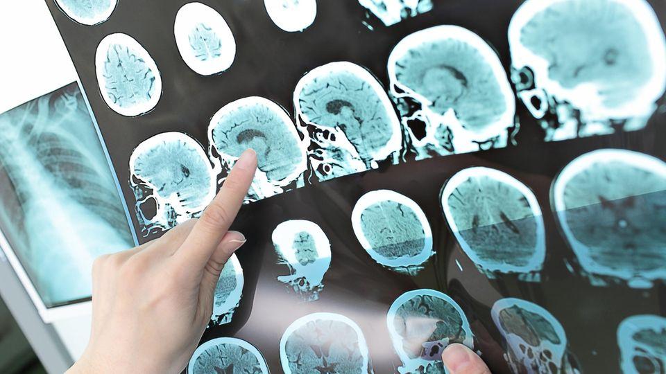 Hirnschädigung bei Alzheimer Demenz