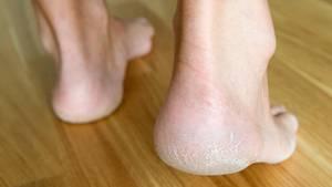 Hornhaut Socken pflegen trockene Haut