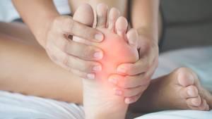 Hühneraugen sind schmerzhafte Verhornungen, die vor allem an den Füßen durch falsche Druckbelastung entstehen