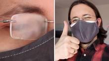Beschlagene Brille durch Maske? Diese Tipps helfen wirklich