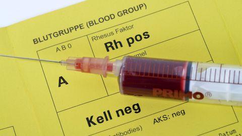 Neue Corona-Studie: Menschen mit bestimmten Blutgruppen könnten bei Covid-19 besonders gefährdet sein