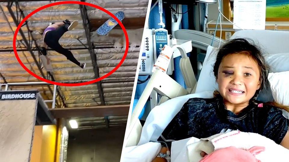 Elfjährige Skateboarderin überlebt lebensgefährlichen Sturz und sendet starke Botschaft