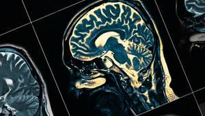 Es gibt bestimmte Faktoren, die eine Demenz begünstigen.