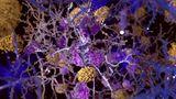 Alzheimer kann auch in den Genen liegen