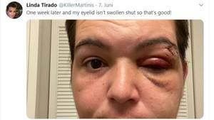 Twitter-Bild - Linda Tirado zeigt ihr verletztes Auge