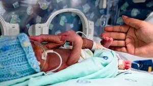 Der kleine Jefferson liegt in einem Inkubator im Krankenhaus von Cali