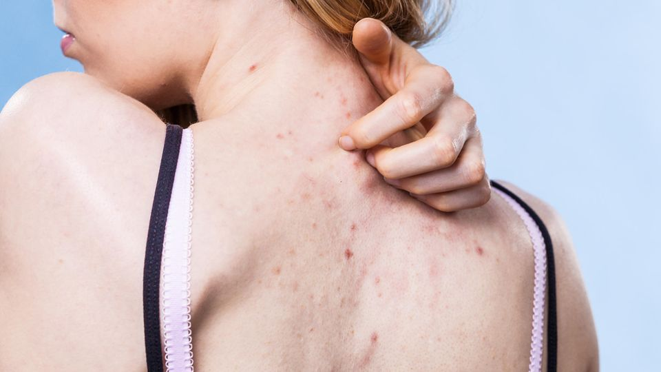 Unreine Haut tritt nicht nur im Gesicht auf, sondernauch an den Schultern, auf der Brust oderam Rücken