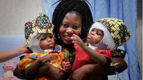 Die beiden kleinen MädchenErvina und Prefina, hier mit ihrer Mutter, müssen noch einige Zeit spezielle Helme tragen
