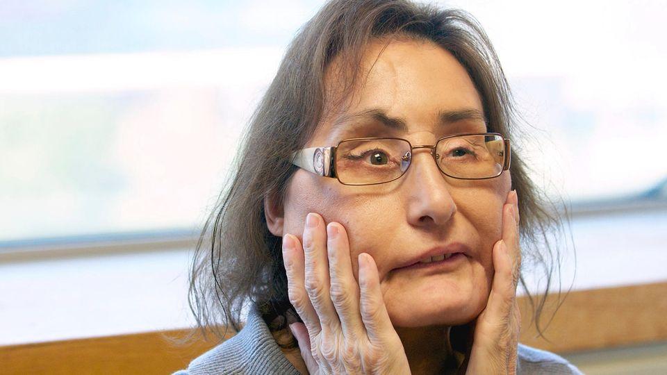 Connie Culp, die Frau mit der ersten großflächigen Gesichtstransplantation in den USA, auf einer Aufnahme aus dem Jahr 2010