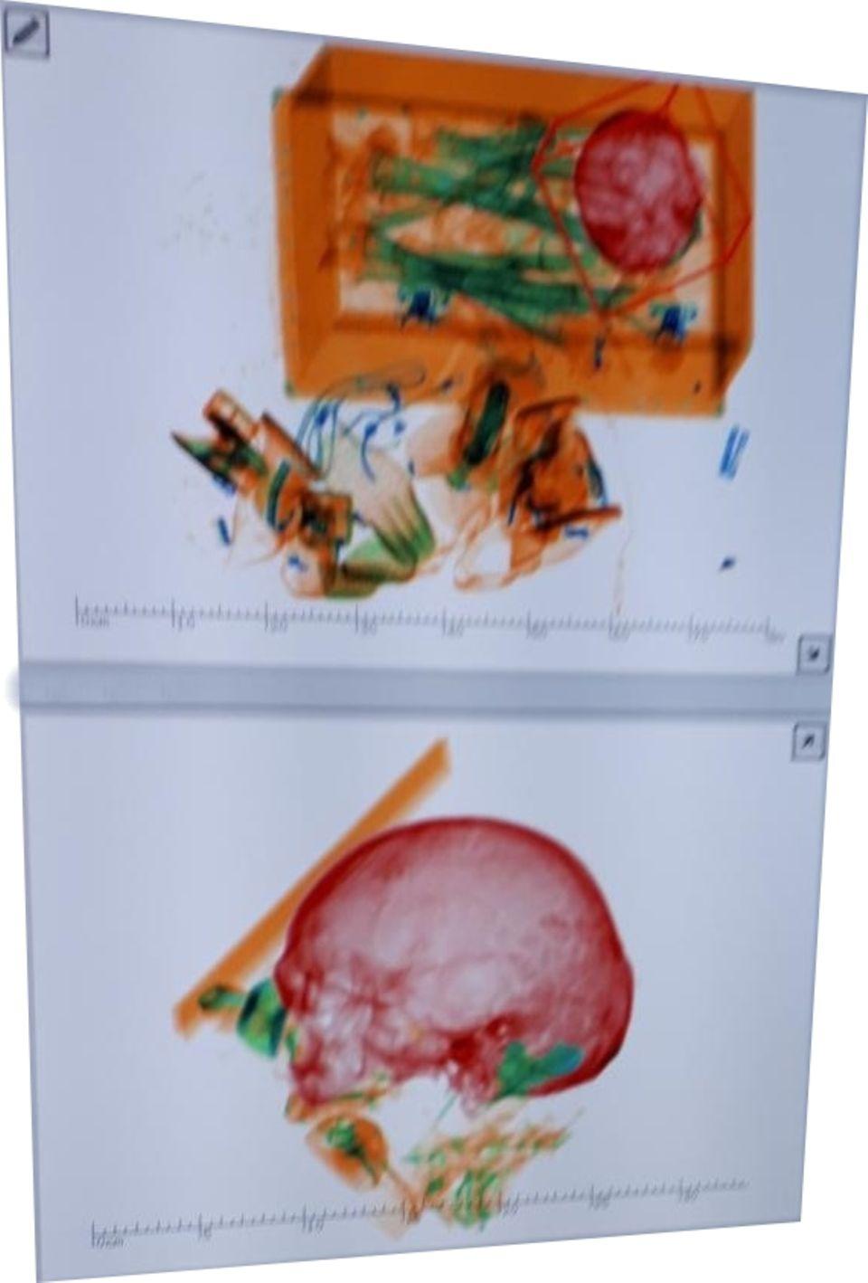 Die undatierte Aufnahme zeigt ein Röntgenbild von einer Holzkiste mit den Gebeinen von einem Mann