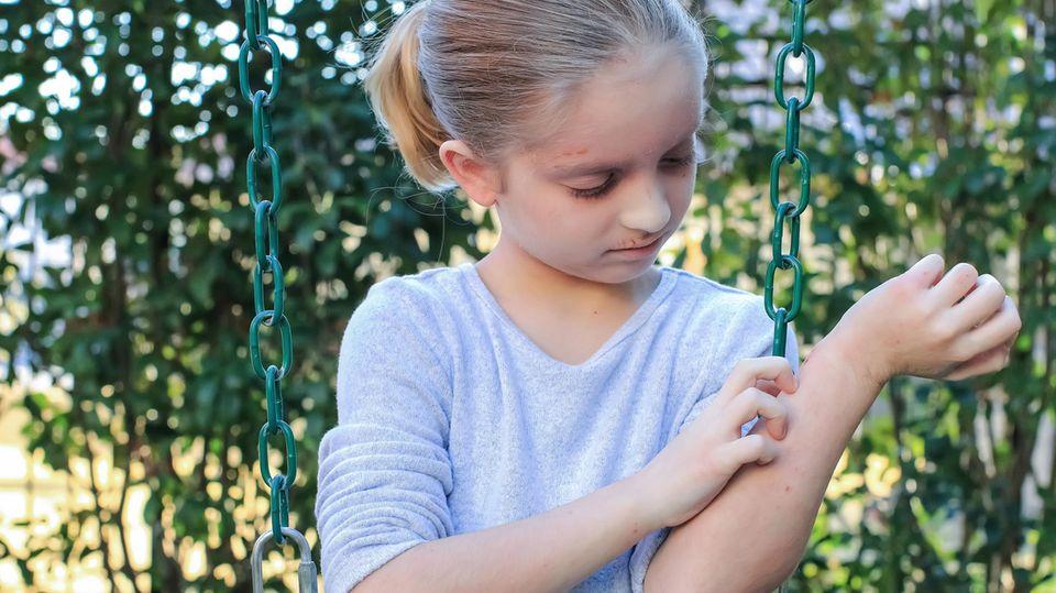 Ein Kind kratzt an einer entzündeten Stelle