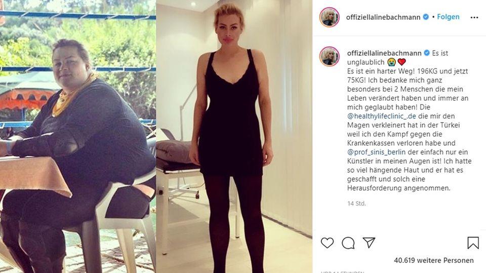 Aline Bachmann postet Vorher-Nachher-Foto