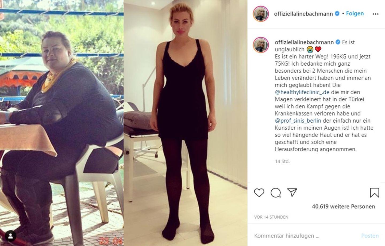Aline Bachmann veröffentlicht ein Vorher- und Nachher-Foto